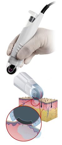 Mezoterapia mikroigłowa frakcyjna