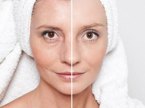 Zdrowie skóry – od czego zależy?