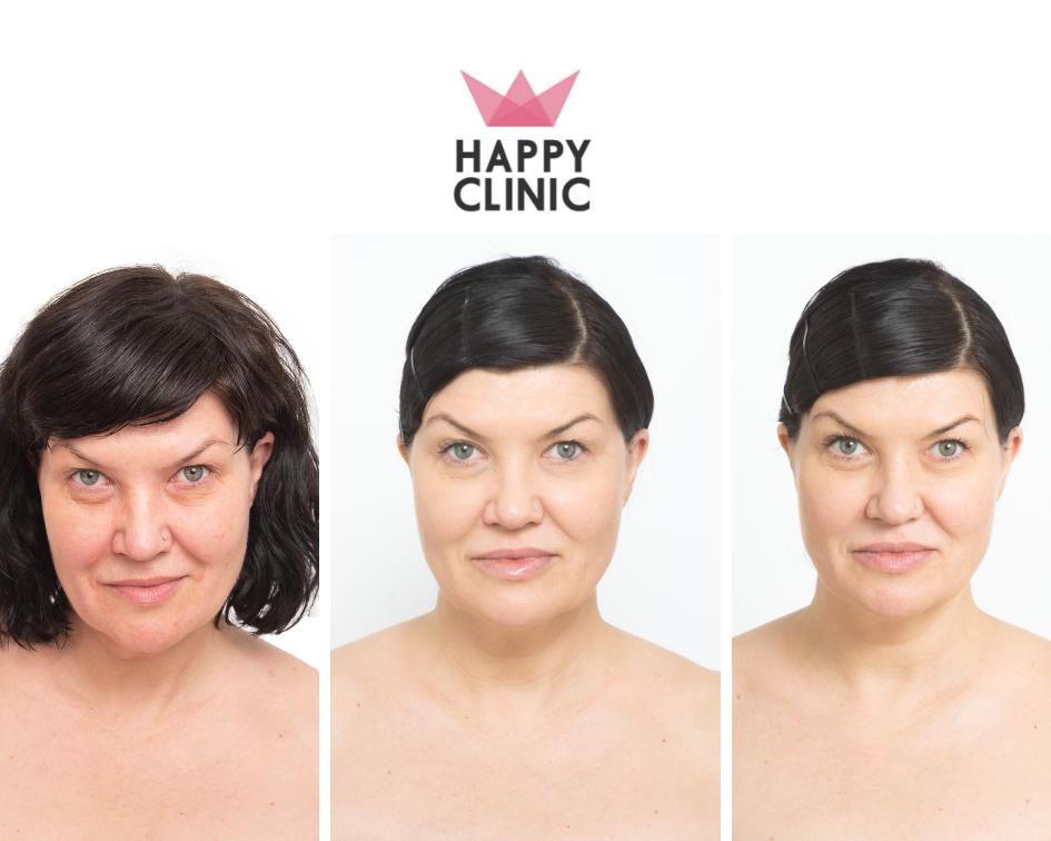 happy clinic metamorfoza